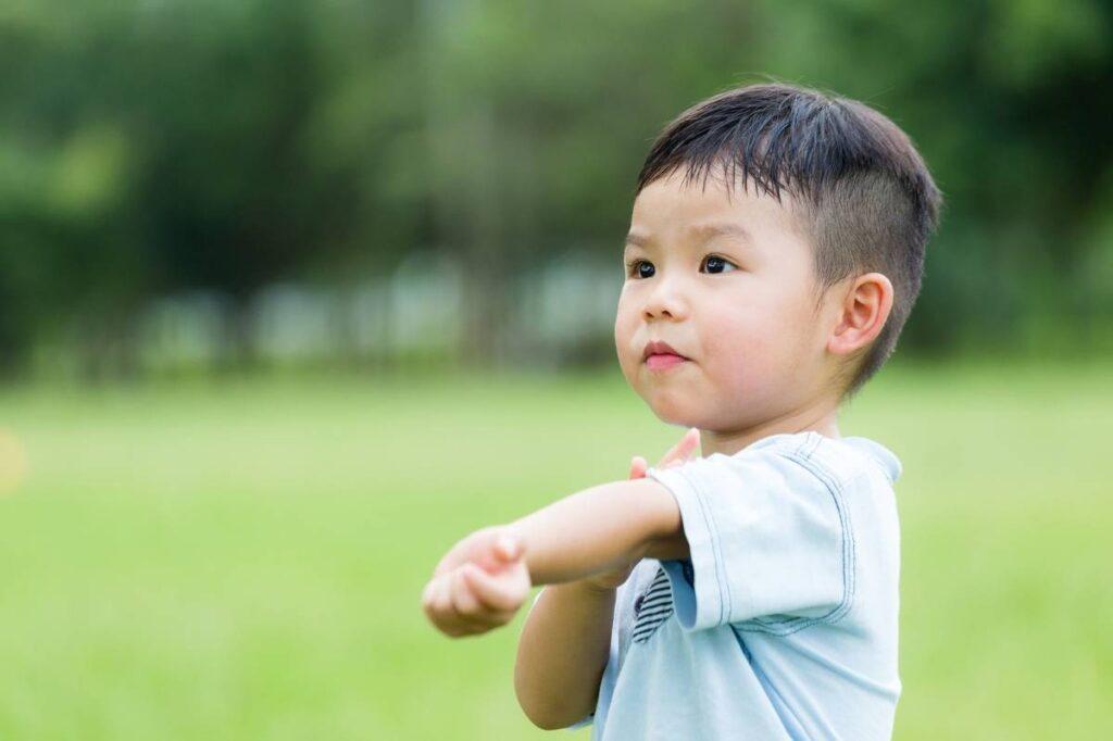 child with bug bite or rash