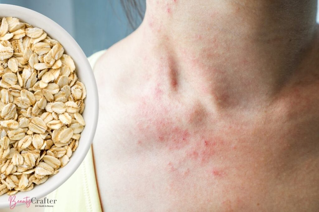 oatmeal for eczema shown next to woman with irritated skin.