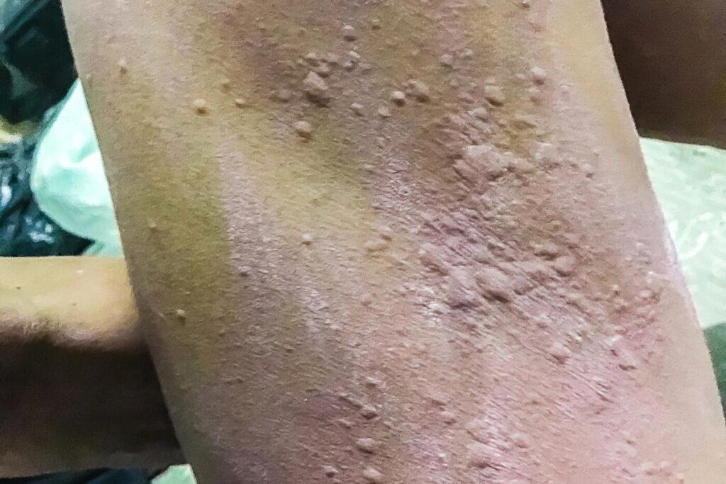 calamine lotion on rash.